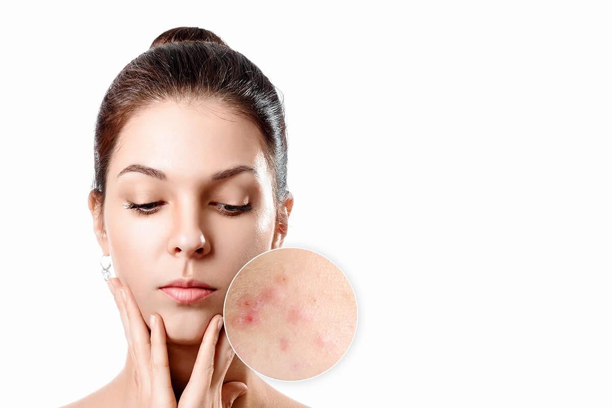 Młoda kobieta z dłońmi przy brodzie - popularne choroby skóry
